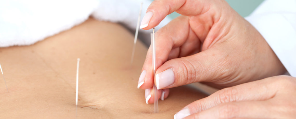 Acupuncture during IVF treatment